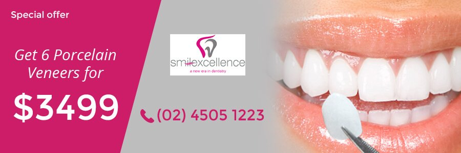 dental veneers richmond nsw
