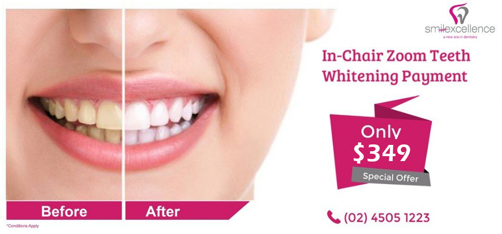 Zoom Teeth Whitening Richmond NSW